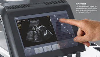 H60 Ultrasound—Performance at Its Best